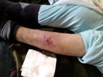 ZACIJELIVANJE RANE izrasta nova koža rana se zatvara novim tkivom i kožom
